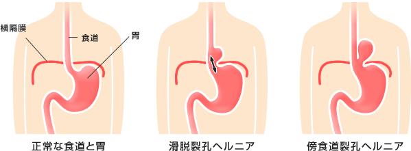 横隔膜裂孔ヘルニア